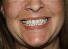 Lip Augmentation / Enhancement Before Photo by Larry Weinstein, MD; Chester, NJ - Case 38227