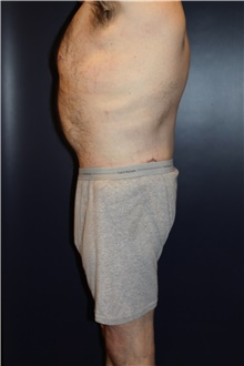 Body Lift After Photo by Larry Weinstein, MD; Chester, NJ - Case 39627