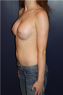 Breast Augmentation After Photo by Larry Weinstein, MD; Chester, NJ - Case 41591