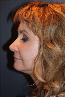 Facelift After Photo by Larry Weinstein, MD; Chester, NJ - Case 41599