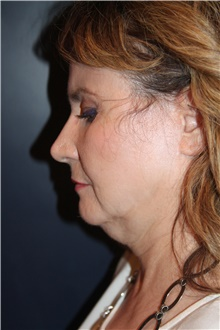 Facelift Before Photo by Larry Weinstein, MD; Chester, NJ - Case 41599
