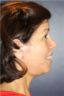 Facelift After Photo by Larry Weinstein, MD; Chester, NJ - Case 41601