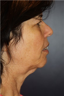 Facelift Before Photo by Larry Weinstein, MD; Chester, NJ - Case 41601