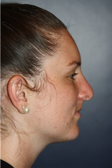 Rhinoplasty After Photo by Larry Weinstein, MD; Chester, NJ - Case 42063