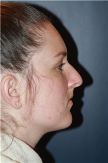 Rhinoplasty Before Photo by Larry Weinstein, MD; Chester, NJ - Case 42063
