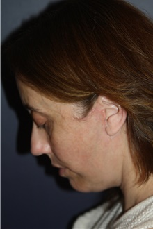 Neck Lift After Photo by Larry Weinstein, MD; Chester, NJ - Case 42065