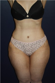 Tummy Tuck After Photo by Larry Weinstein, MD; Chester, NJ - Case 42067