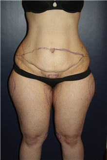 Tummy Tuck Before Photo by Larry Weinstein, MD; Chester, NJ - Case 42067