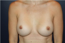 Breast Augmentation After Photo by Larry Weinstein, MD; Chester, NJ - Case 42554