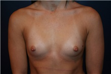 Breast Augmentation Before Photo by Larry Weinstein, MD; Chester, NJ - Case 42554