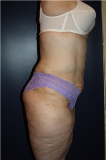Body Contouring After Photo by Larry Weinstein, MD; Chester, NJ - Case 42555