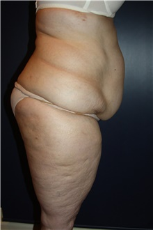 Body Contouring Before Photo by Larry Weinstein, MD; Chester, NJ - Case 42555