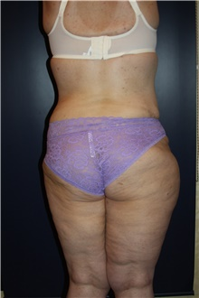 Liposuction After Photo by Larry Weinstein, MD; Chester, NJ - Case 42556