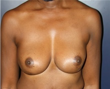 Breast Implant Revision After Photo by Larry Weinstein, MD; Chester, NJ - Case 42557
