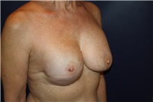 Breast Reconstruction After Photo by Larry Weinstein, MD; Chester, NJ - Case 42559