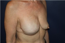 Breast Reconstruction Before Photo by Larry Weinstein, MD; Chester, NJ - Case 42559
