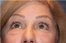 Eyelid Surgery Before Photo by Larry Weinstein, MD; Chester, NJ - Case 42624
