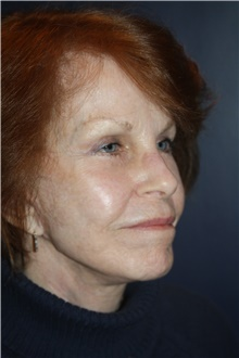 Neck Lift After Photo by Larry Weinstein, MD; Chester, NJ - Case 42738