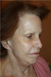 Neck Lift Before Photo by Larry Weinstein, MD; Chester, NJ - Case 42738