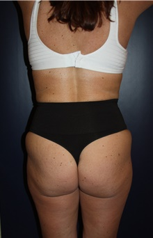 Liposuction After Photo by Larry Weinstein, MD; Chester, NJ - Case 42748