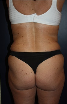 Liposuction Before Photo by Larry Weinstein, MD; Chester, NJ - Case 42748