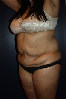 Tummy Tuck Before Photo by Larry Weinstein, MD; Chester, NJ - Case 43425