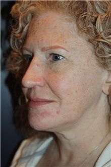 Facelift Before Photo by Larry Weinstein, MD; Chester, NJ - Case 43591