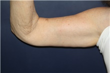 Arm Lift After Photo by Larry Weinstein, MD; Chester, NJ - Case 44014