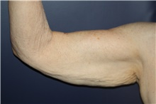 Arm Lift Before Photo by Larry Weinstein, MD; Chester, NJ - Case 44014