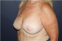 Breast Reconstruction After Photo by Larry Weinstein, MD; Chester, NJ - Case 44019