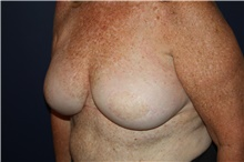 Breast Reconstruction Before Photo by Larry Weinstein, MD; Chester, NJ - Case 44019