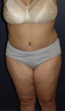 Tummy Tuck After Photo by Larry Weinstein, MD; Chester, NJ - Case 44310