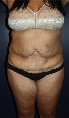 Tummy Tuck Before Photo by Larry Weinstein, MD; Chester, NJ - Case 44310