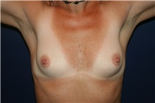 Breast Augmentation Before Photo by Larry Weinstein, MD; Chester, NJ - Case 44312