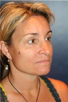 Facelift After Photo by Larry Weinstein, MD; Chester, NJ - Case 44313