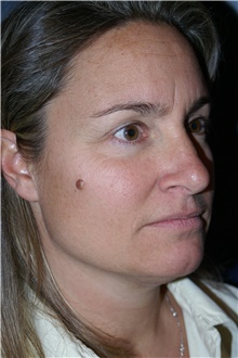 Facelift Before Photo by Larry Weinstein, MD; Chester, NJ - Case 44313