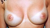 Breast Augmentation After Photo by Larry Weinstein, MD; Chester, NJ - Case 6960