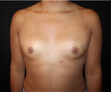 Breast Augmentation Before Photo by Burt Greenberg, MD; Great Neck, NY - Case 32779