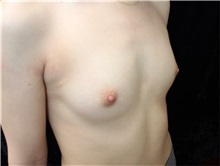 Breast Augmentation Before Photo by Burt Greenberg, MD; Great Neck, NY - Case 32781