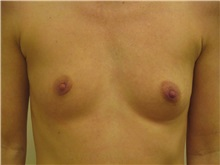 Breast Augmentation Before Photo by Jeffrey Antimarino, MD, FACS; Pittsburgh, PA - Case 34357