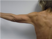 Arm Lift After Photo by Jeffrey Antimarino, MD, FACS; Pittsburgh, PA - Case 34359