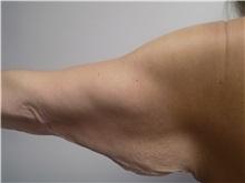 Arm Lift Before Photo by Jeffrey Antimarino, MD, FACS; Pittsburgh, PA - Case 34359