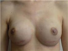 Breast Reconstruction After Photo by Jeffrey Antimarino, MD, FACS; Pittsburgh, PA - Case 34361