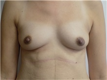 Breast Reconstruction Before Photo by Jeffrey Antimarino, MD, FACS; Pittsburgh, PA - Case 34361
