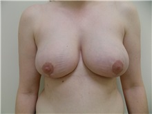 Breast Reduction After Photo by Jeffrey Antimarino, MD, FACS; Pittsburgh, PA - Case 34362