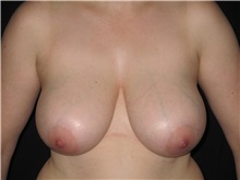 Breast Reduction Before Photo by Jeffrey Antimarino, MD, FACS; Pittsburgh, PA - Case 34362