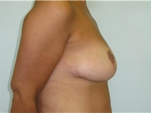 Breast Lift After Photo by Jeffrey Antimarino, MD, FACS; Pittsburgh, PA - Case 34363