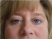 Eyelid Surgery After Photo by Jeffrey Antimarino, MD, FACS; Pittsburgh, PA - Case 34364