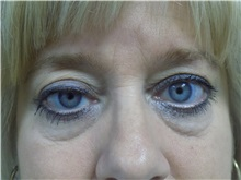 Eyelid Surgery Before Photo by Jeffrey Antimarino, MD, FACS; Pittsburgh, PA - Case 34364