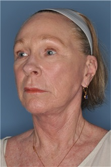 Facelift After Photo by Nathan Patterson, MD; Pensacola, FL - Case 35322